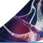 Asuragen announce the launch of AmplideX® PCR/CE HTT kit for Huntington's disease