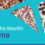 Cell Marque Disease of the Month – Lymphoma