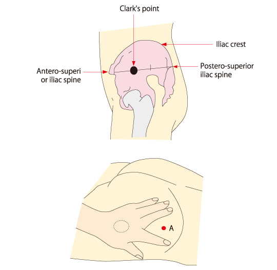 Buttock Injection Site: Gluteal Intramuscular Injection Model II