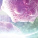 Comprehensive diagnosis of myasthenia gravis with MuSK Antibodies ELISA