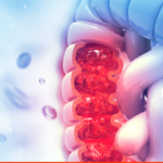 Blood soluble OX40 (CD134) levels in advanced colorectal cancer